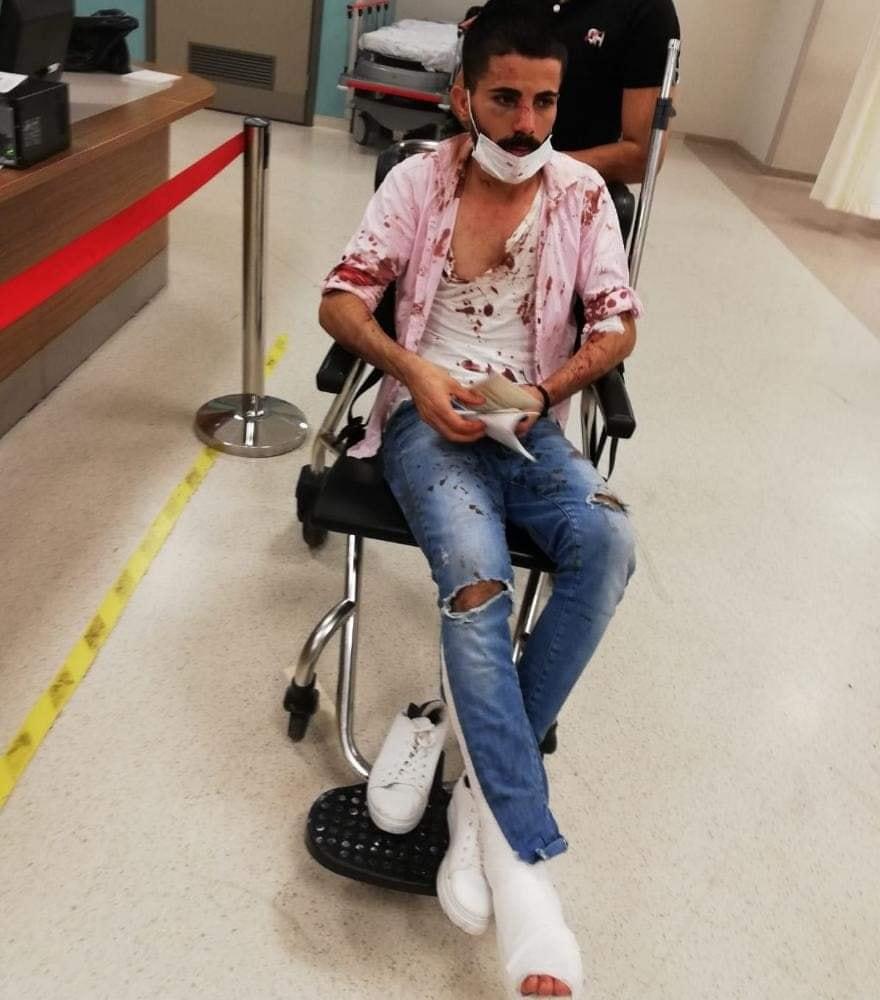 اعتداء عنصري جديد يتسبب بإصابة عمال سوريين في ولاية أضنة